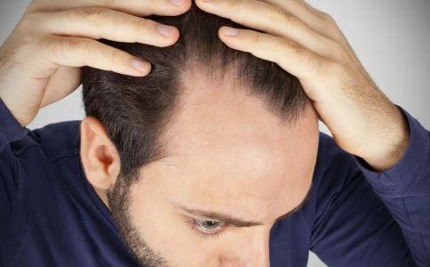 中国脱发现状 如何预防脱发 导致脱发的原因有哪些
