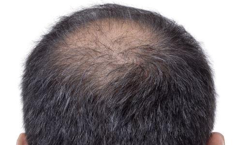 秃顶有秃顶的十大好处 你知道是什么吗