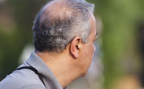 秃顶有秃顶的十大好处 秃顶的好处 秃顶的原因有哪些