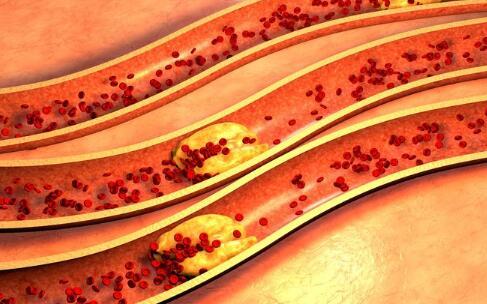 少女血液变粉红色 不健康食物对身体的危害 吃垃圾食物的危害