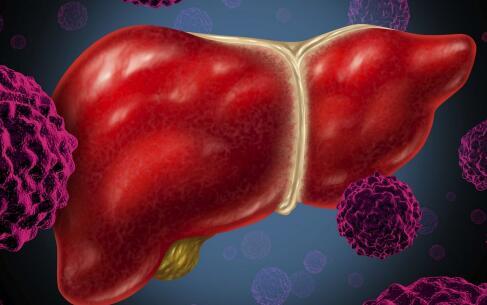肝癌 肝功能检查 胆红素