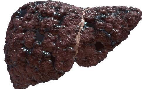 肝癌吃什么好 肝癌吃什么治疗好 肝癌吃什么好