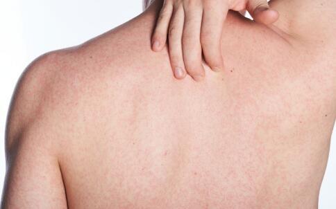 湿疹降低皮肤癌的相关研究 湿疹防止皮肤癌形成 抗皮肤癌的新途径