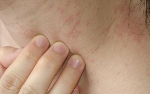 皮肤癌有什么症状 皮肤癌临床表现 皮肤癌长什么样子
