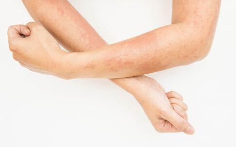 皮肤癌如何预防 皮肤癌有什么预防方法 皮肤癌的症状有哪些