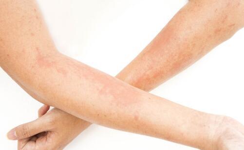 引起皮肤癌的原因有哪些 皮肤癌病因 皮肤癌是怎么引起的