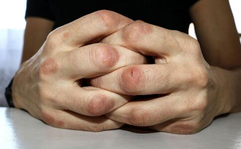 皮肤癌该怎么诊断 皮肤癌怎么自我诊断 该怎么辨别皮肤癌