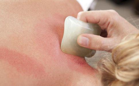 刮痧能治疗中暑吗 中暑的刮痧疗法