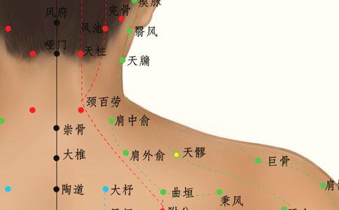 天髎穴 天髎穴位的准确位置图 天髎穴位图