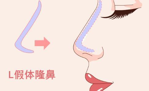 女大学生隆鼻身亡 隆鼻手术风险 隆鼻手术的副作用