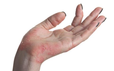 你为什么会得银屑病中医是如何治疗银屑病的