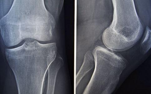 女孩一摔就骨折 脆骨症能治愈吗 什么是脆骨病