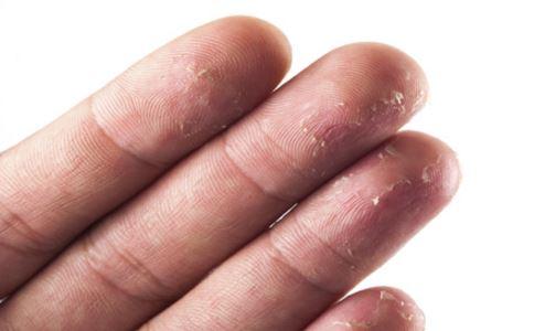 手脱皮是什么原因 手脱皮的原因有哪些 手脱皮怎么办