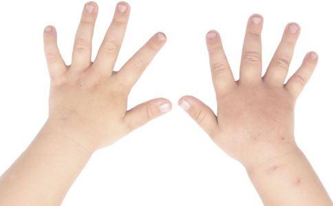 指甲出现黑白点什么原因.如何通过指甲判断疾病 指甲为什么会出现黑白点