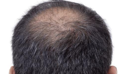 男性脱发是什么原因 男性脱发该如何治疗 男性脱发的原因有哪些