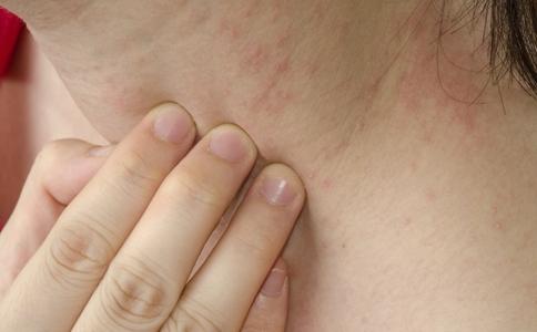 湿疹患者平时吃什么 湿疹常见的病因是什么 湿疹怎么办