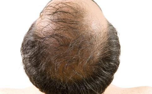 中年男性秃头怎么办 怎么防止男性秃头 男性秃头的原因