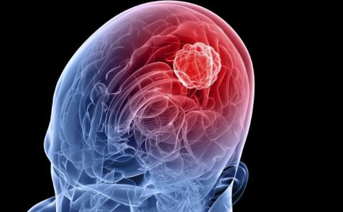 袁惟仁割脑瘤 脑瘤能治愈吗 什么原因引起脑瘤
