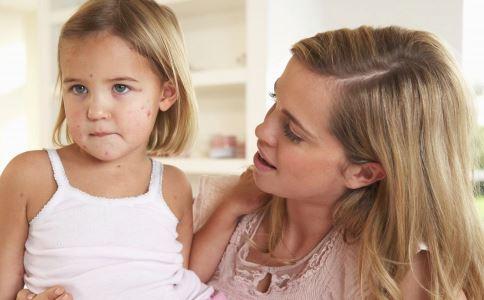 春季水痘高发怎么办 孩子如何远离水痘 孩子长水痘要注意什么
