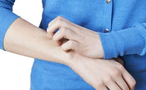 皮肤瘙痒怎么办 春季皮肤瘙痒如何治疗 皮肤瘙痒怎么处理