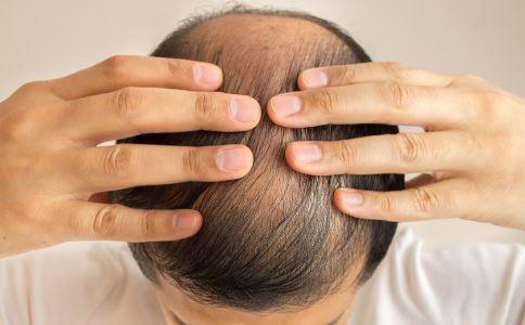 中年男人脱发的原因 中年脱发的原因有哪些 中年男人脱发吃什么好