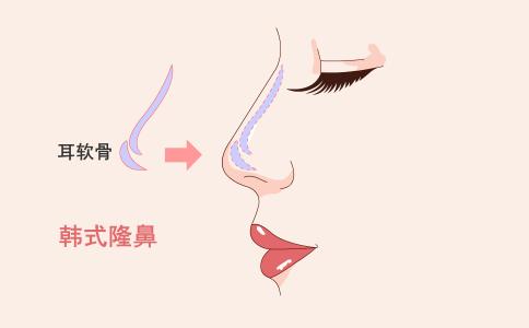 什么是线雕隆鼻 线雕隆鼻能持续多长时间 线雕隆鼻有什么副作用