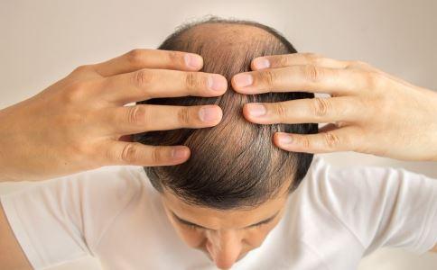 植发导致死亡的原因 种植毛发的危险 种植毛发有哪些副作用