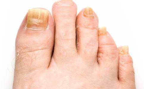 脚趾缝痒的原因及治疗处方