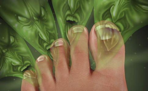 脚气为什么偏爱夏天 夏季怎么预防脚气 治疗脚气有哪些偏方