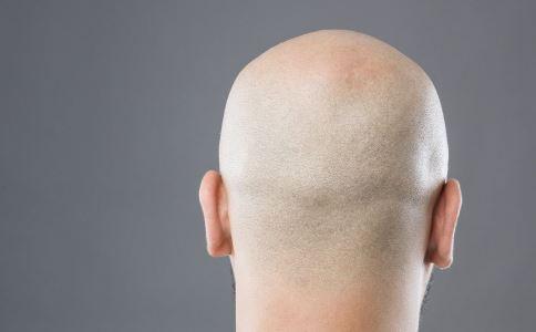 经常掉头发是什么原因 掉头发严重怎么办 脱发跟什么有关