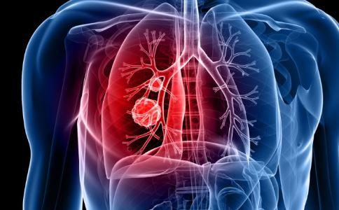 服用狗药治好癌症 如何预防肺癌 小细胞肺癌治疗方法