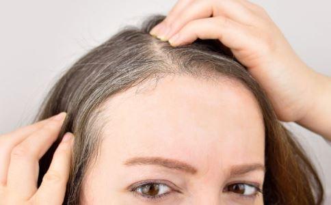 早生白发可能是对抗痴呆症 如何预防痴呆症