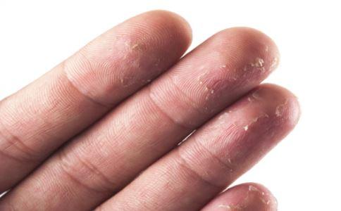 手掌脱皮怎么治疗 手掌脱皮怎么办 手掌脱皮怎么缓解