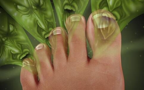 夏季脚臭是什么原因 夏季怎么预防脚臭 预防脚臭的方法有哪些