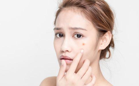 脸上反复长痘痘怎么办 祛痘有哪些方法 脸上反复长痘痘的原因