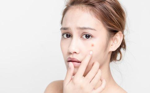 哪些因素会引起痤疮 痤疮怎么办 痤疮的病因