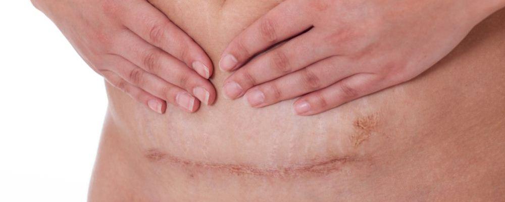 剖腹产疤痕增生怎么办 剖腹产疤痕增生如何护理 为什么会出现剖腹产疤痕