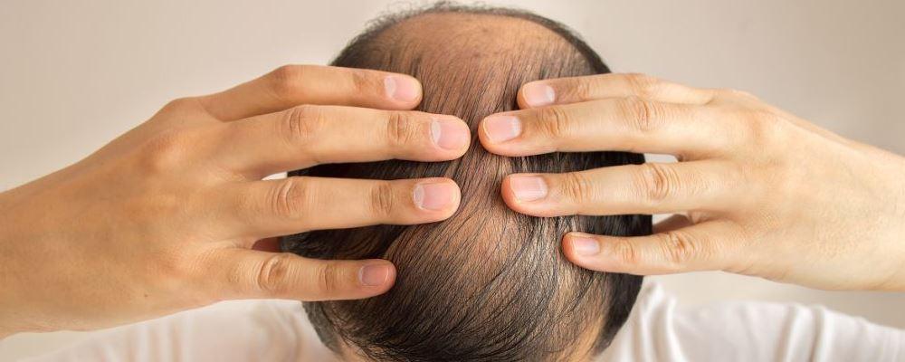 韩国泡菜可以治疗脱发吗 脱发是什么原因引起的 怎样预防脱发