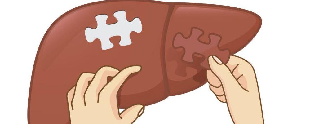 什么是脂肪肝 脂肪肝的原因是什么 脂肪肝的症状有哪些
