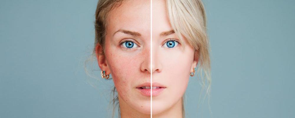 女人如何延缓衰老 如何延缓衰老 延缓衰老方法