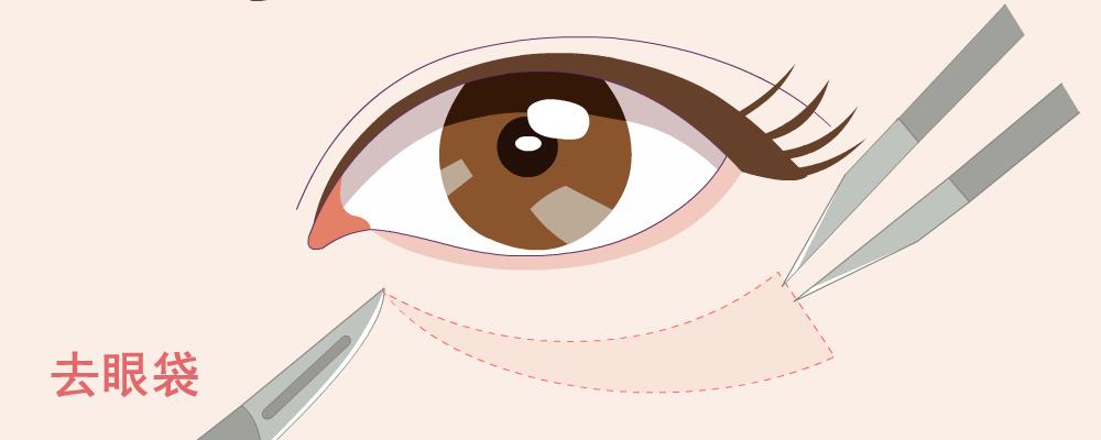 去眼袋手术能维持几年 眼袋手术术后注意事项是什么 去眼袋手术有什么风险