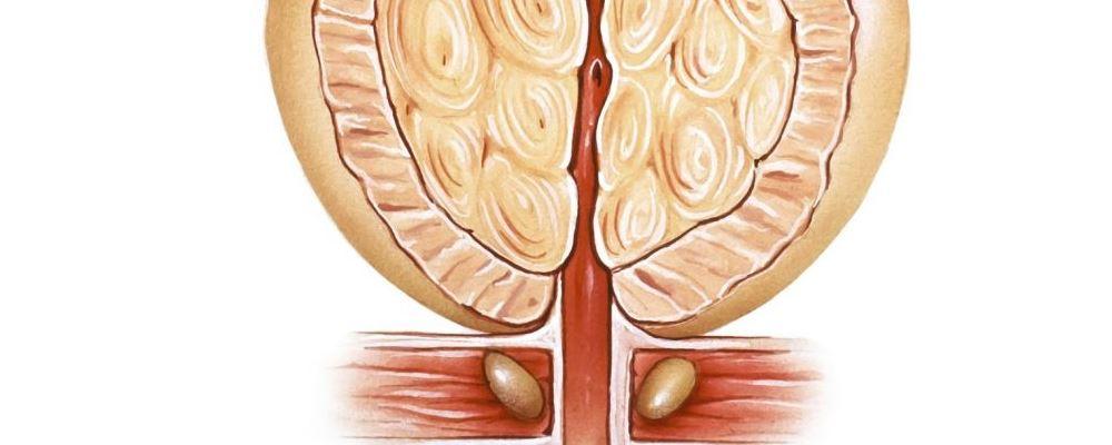 50岁以上的男性最好每年检查一次前列腺。