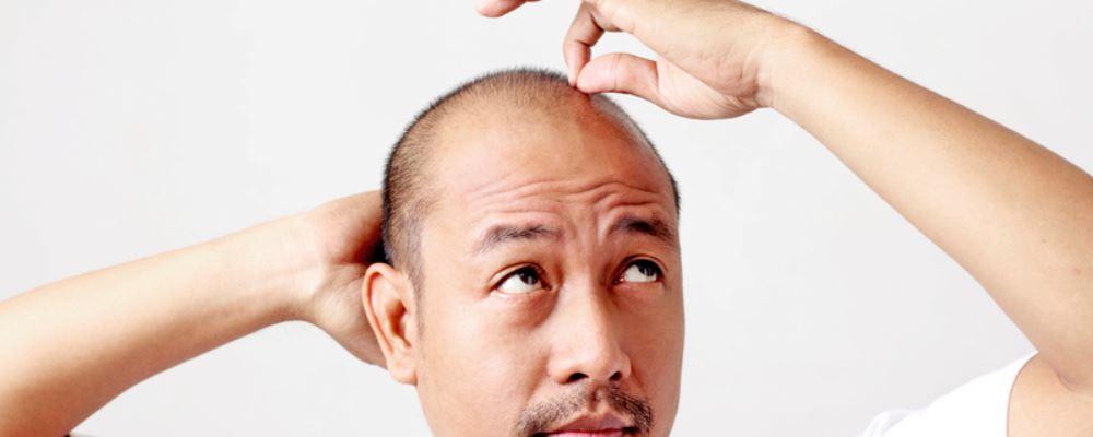 男人肾虚的症状有哪些 肾虚的调理方法 男人肾虚的症状表现