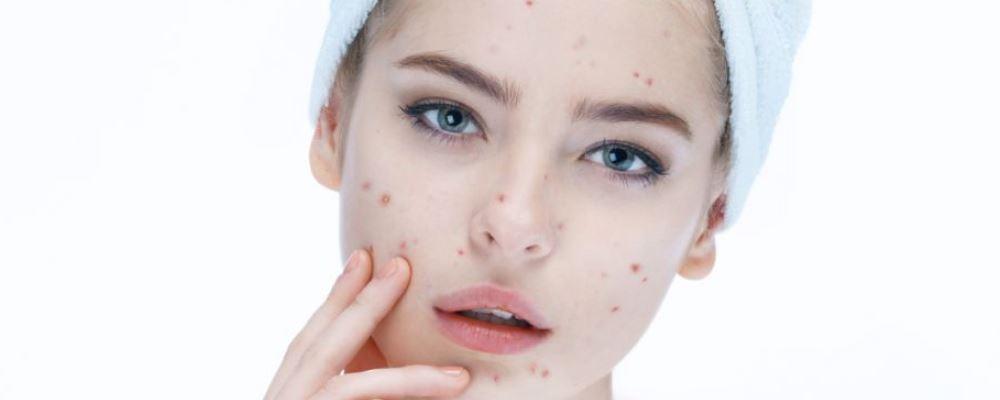 脸上有粉刺怎么办 长粉刺的原因 脸上长痘怎么办