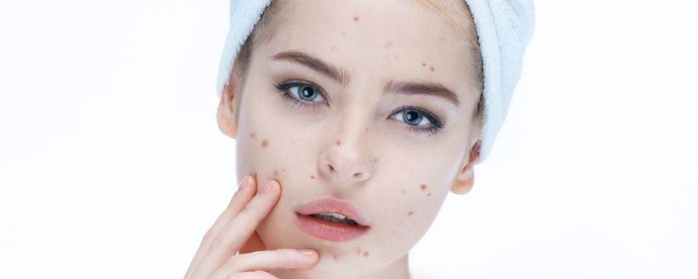 脸上爱长痘痘怎么办 祛痘方法有哪些 祛痘正确方法
