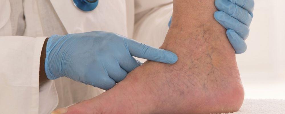 脚扭伤怎么处理才正确 脚扭伤后快速恢复方法 脚扭伤的正确处理方法