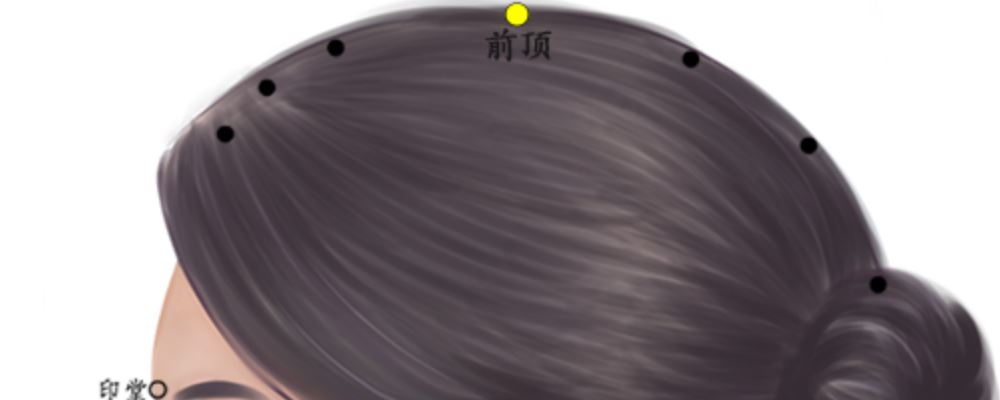 前顶穴位的准确位置图 前顶穴的准确位置图 前顶穴的位置图