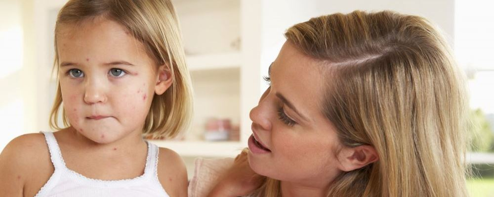水痘是什么原因引起的 宝宝长水痘都有哪些症状 宝宝出水痘是什么原因