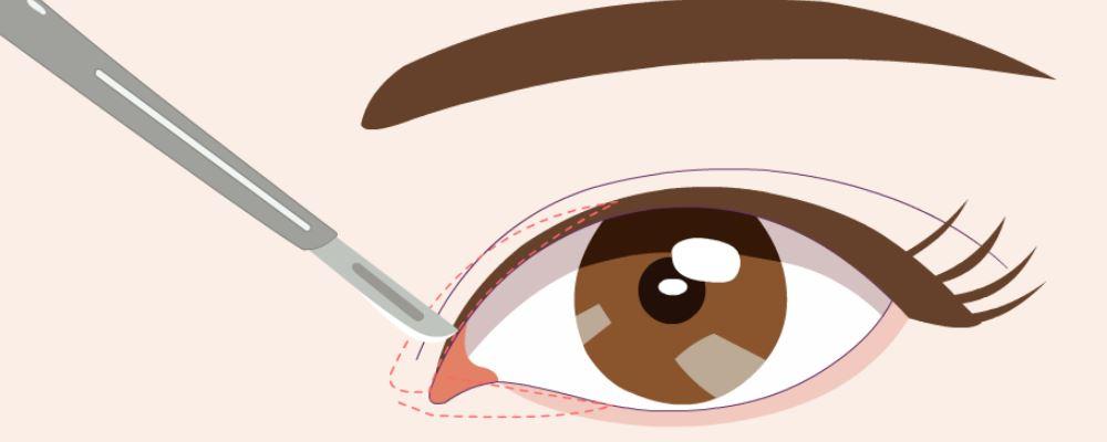 开眼角手术失败怎么办 开眼角的副作用 开眼角的后遗症
