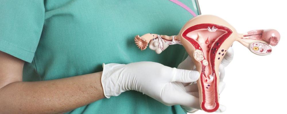 子宫肌瘤有什么症状 子宫肌瘤需要手术吗 子宫肌瘤和囊肿有什么区别